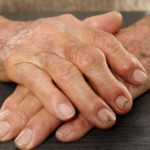 9 Tips on How to Relieve Arthritis Pain Naturally