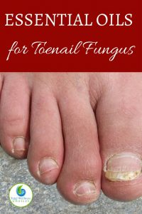 Best Essential Oils for Toenail Fungus