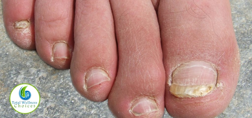 Essential Oil Good Toenail Fungus