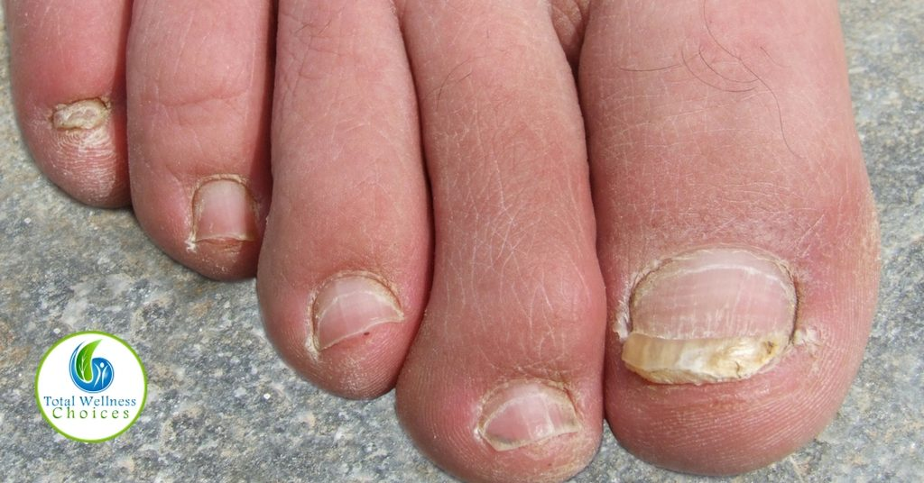 Best Essential Oils for Toenail Fungus You Should Try!