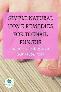 Natural Home Remedies for Toenail Fungus