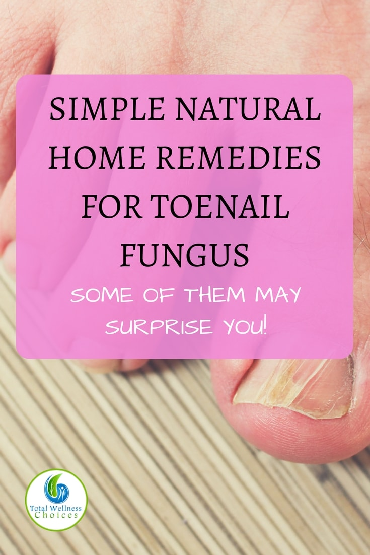 9 Simple Natural Home Remedies for Toenail Fungus that May Surprise You!