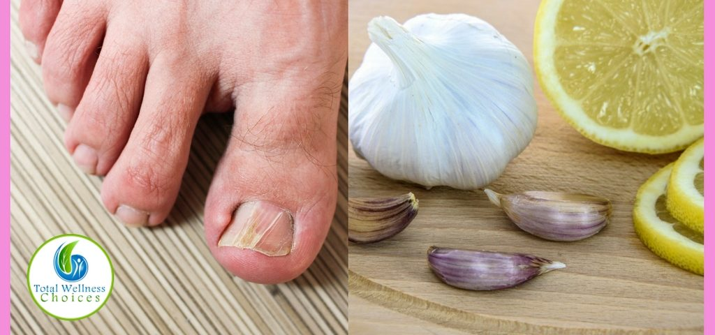 9 Best Natural Home Remedies for Toenail Fungus