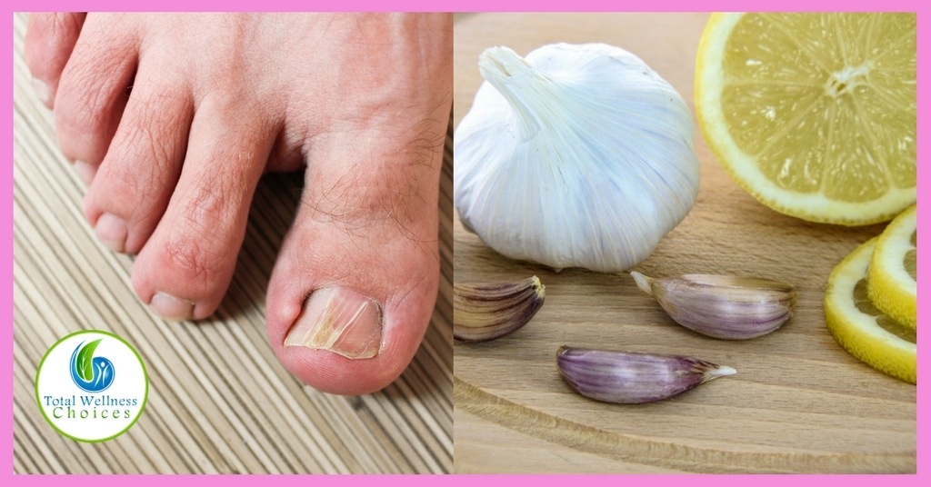 9 Best Natural Home Remedies for Toenail Fungus