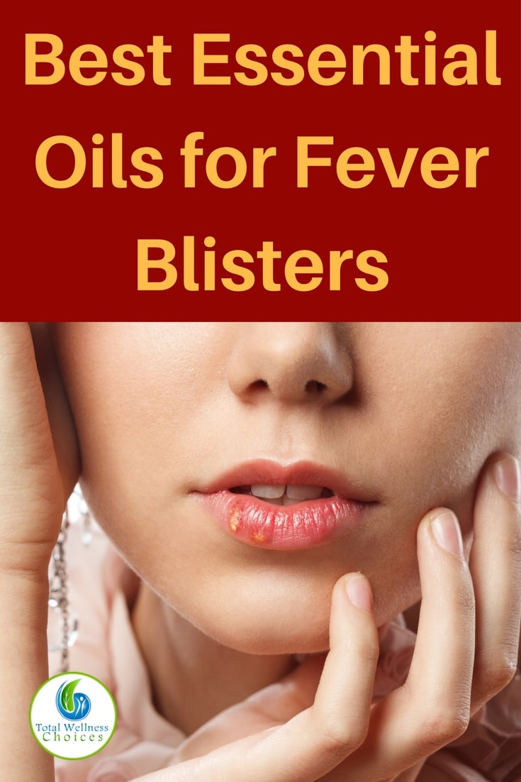 Here are the 5 best essential oils for fever blisters you can use to treat cold sores naturally and effectively!