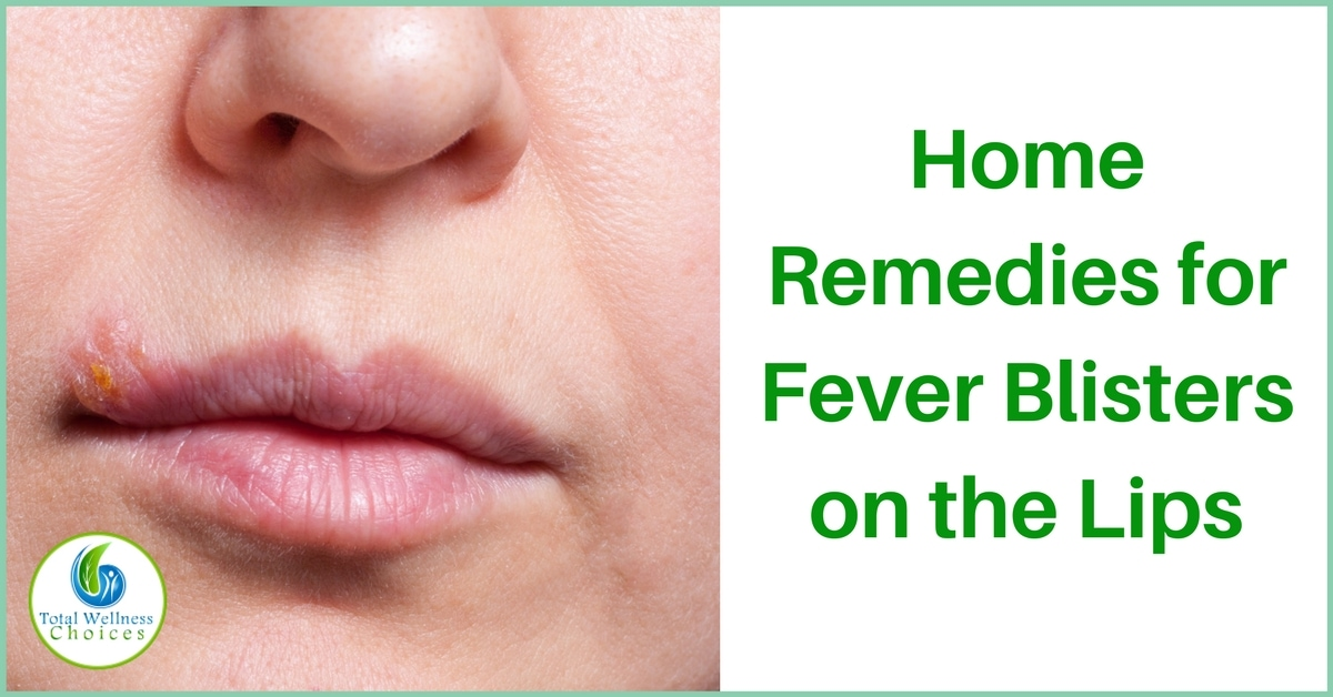 Home Remedies For Cold Sores Lip