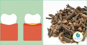 Use Clove Oil Tooth Pain