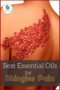 Best Essential Oils for Shingles Pain