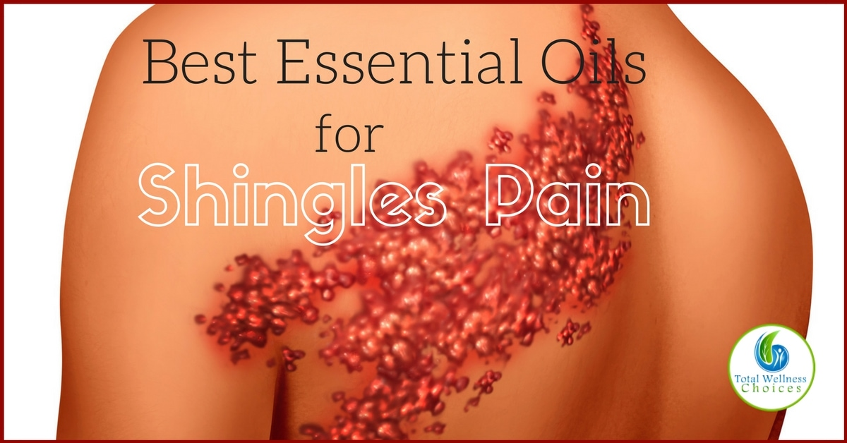9 Best Essential Oils For Shingles Pain Relief That Work