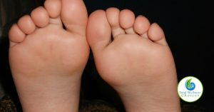 Essential Oil Athlete Foot