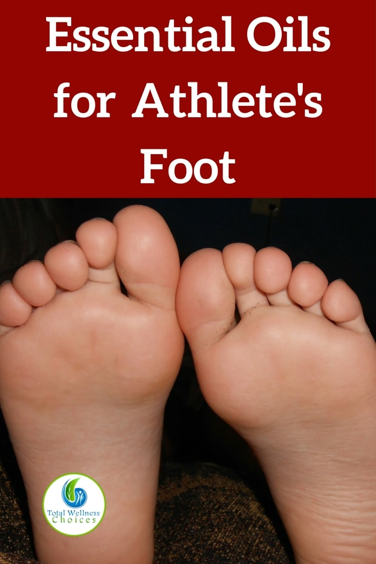 Best essential oils for athlete's foot treatment plus diy recipes! #athletesfoot #athletesfootcure #essentialoils #athletesfootremedy