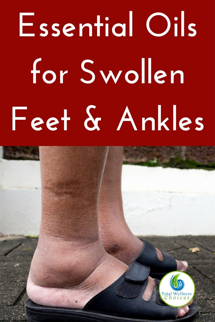 Best essential oils for swollen ankles and feet that can help reduce swelling in your feet or ankles! #essentialoils #naturalremedies #swollenfeet #swollenanklesremedy