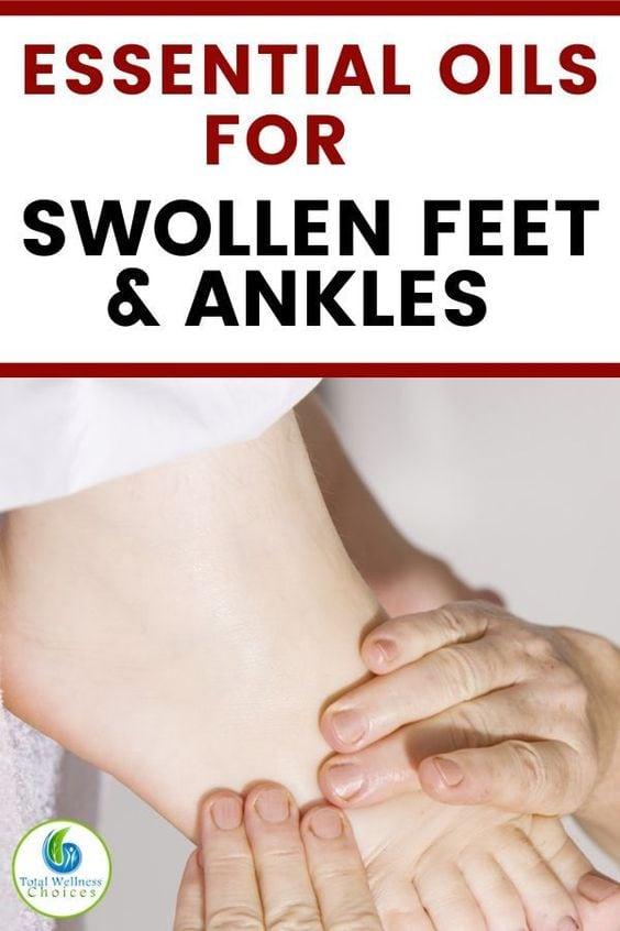 swollen feet essential oils