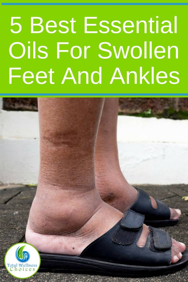 If you suffer from swollen feet and ankles, you need to look at these home remedies made with essential oils. Foot soaks and massages are natural ways to help reduce swelling in your feet and legs when combined with Eos and other natural ingredients. #swollenfeet #feet #tiredfeet #essentialoils #cypress #helichrysum #juniper #lavender #peppermint
