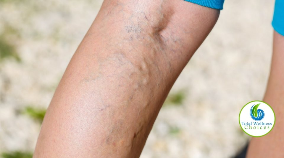 Essential Oils Varicose Veins