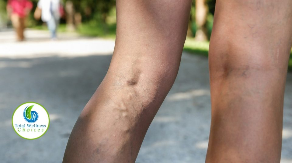 Natural Way Get Rid Varicose Veins