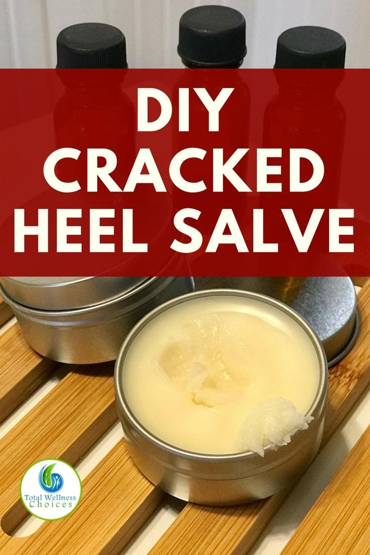 Looking for cracked heel remedies? You will find this cracked heel salve diy recipe with essential oils very helpful! #crackedheelsremedy essentialoildiy #crackedheelsalve
