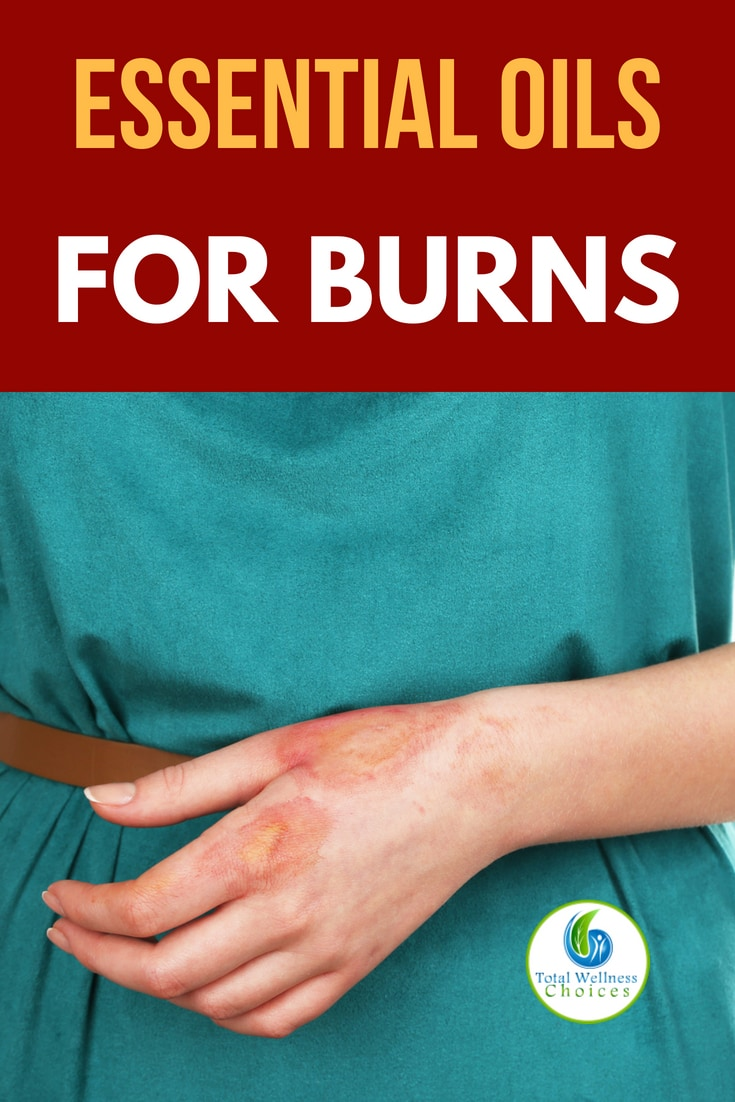 These 5 essential oils for burns are what you need if you are looking for an effective burns treatment or remedy! #burnsremedy #burnstreatment #essentialoilsforburns
