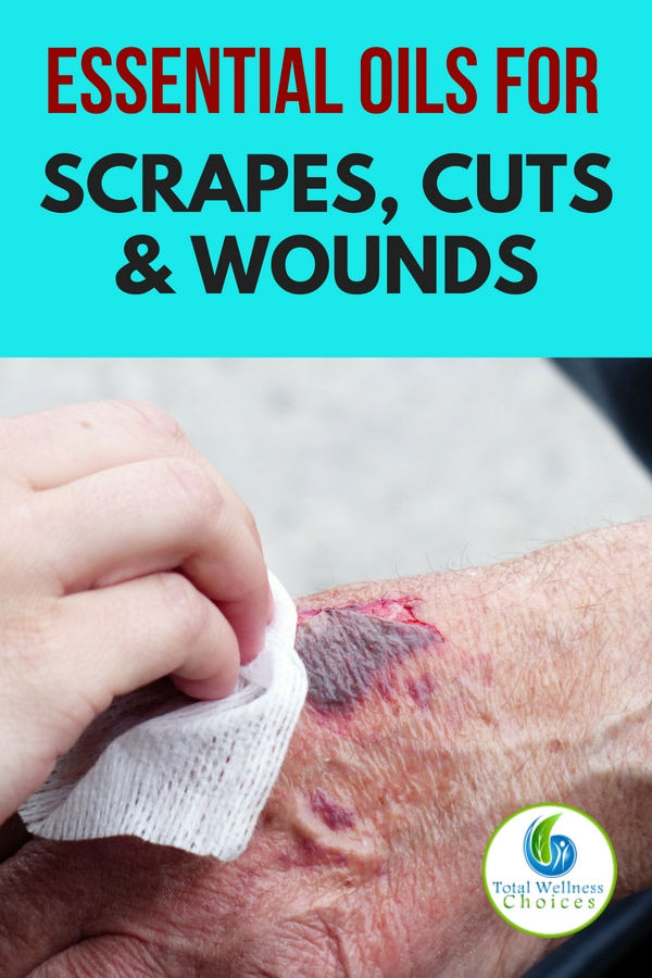 Essential Oils for Scrapes Cuts Wounds