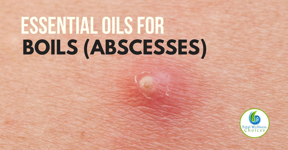 5 Best Essential Oils for Boils (Abscesses) that Really Work!
