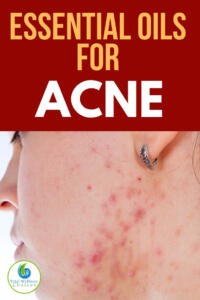 Best Essential oils for acne and pimples