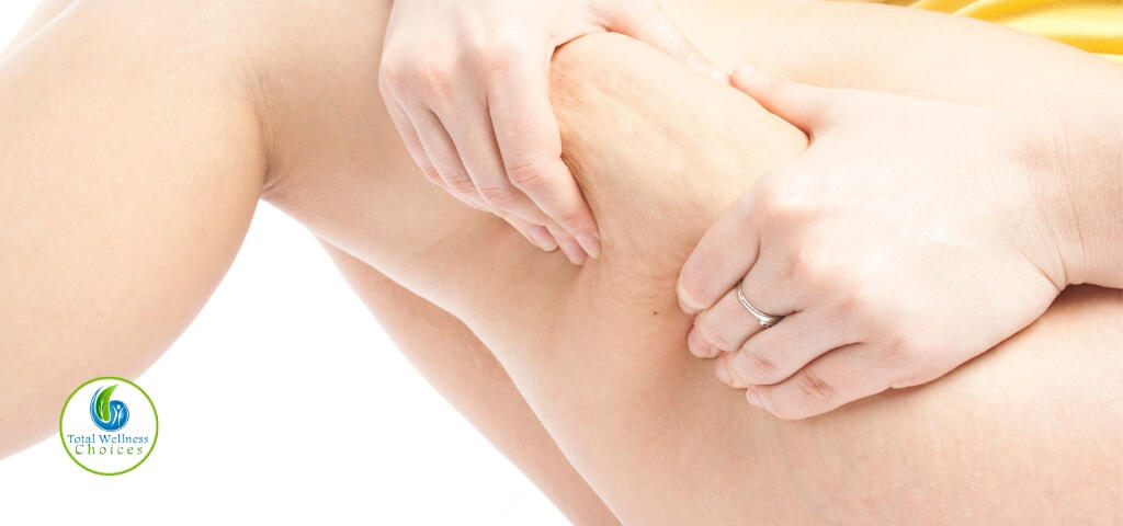Essential oils for cellulite removal