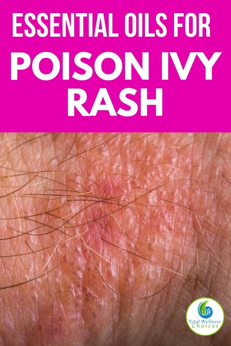Essential oils for poison ivy rash