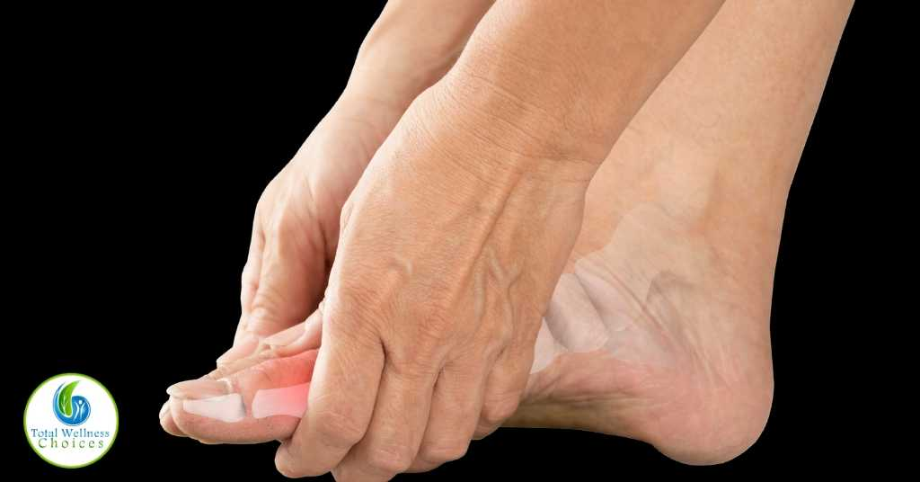 Essential oils for gout relief